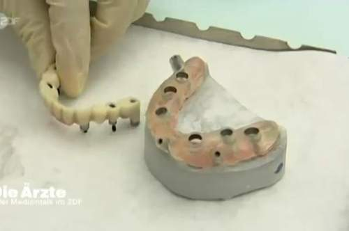 Die Bohrschablone und der im Vorfeld komplett hergestellte Zahnersatz