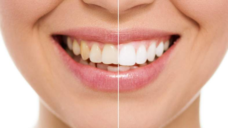 Bleaching - weißere Zähne in einer Behandlung