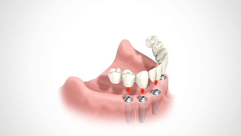 Implantate bei zahnlosem Kiefer