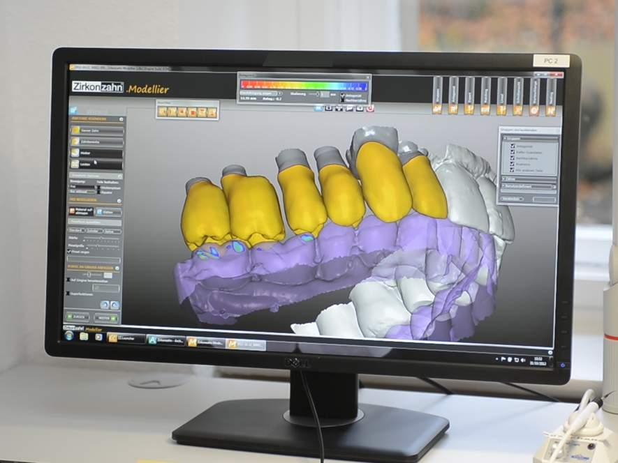 Einzug der digitalen Zahnmedizin