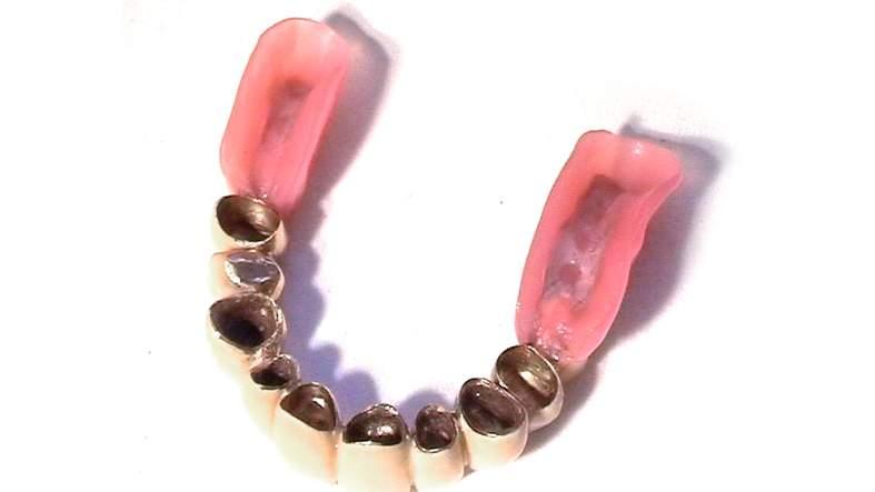 Konventioneller kombiniert festsitzend herausnehmbarer Zahnersatz