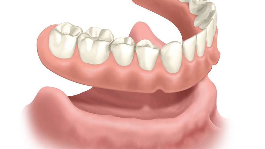 Konventioneller herausnehmbarer Zahnersatz