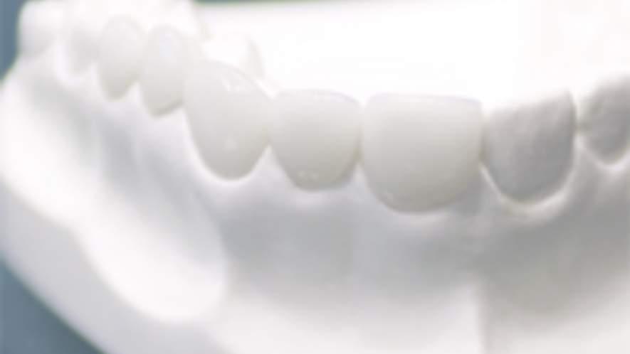 Hochwertiger Zahnersatz aus dem praxiseigenem Zahnlabor