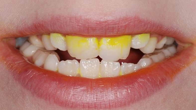 Биопленка - бактериальный слой на зубной поверхности