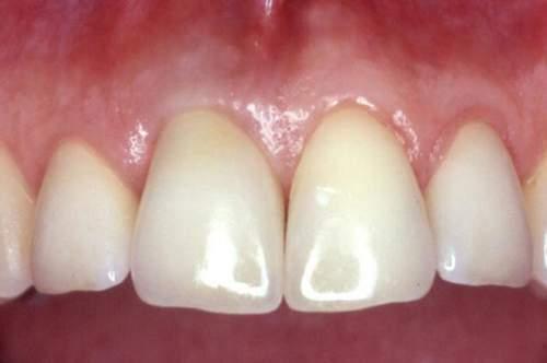 Der fertige Zahnersatz auf einem Implantat