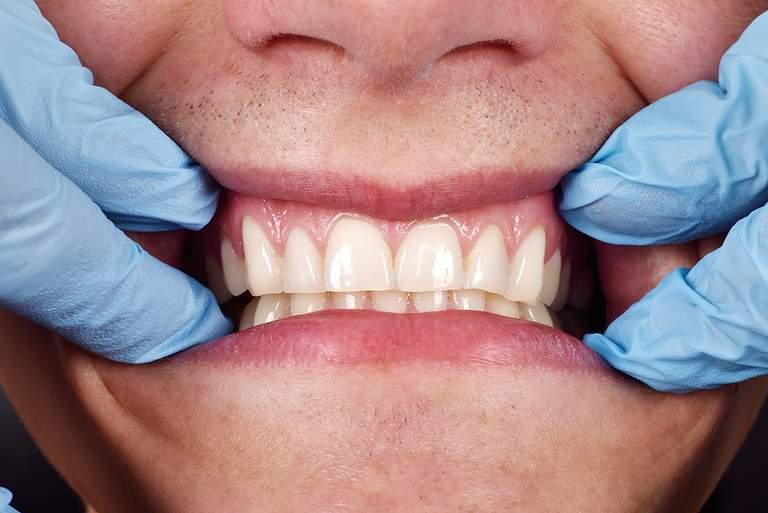 Parodontitis-Selbsttest: Bestimmen Sie Ihr Parodontitisrisiko