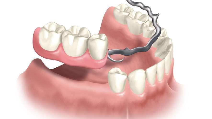 Die verschiedenen Formen des Zahnersatzes