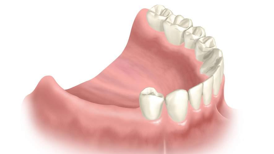 Имплантаты при дефектах зубного ряда конечного расположения