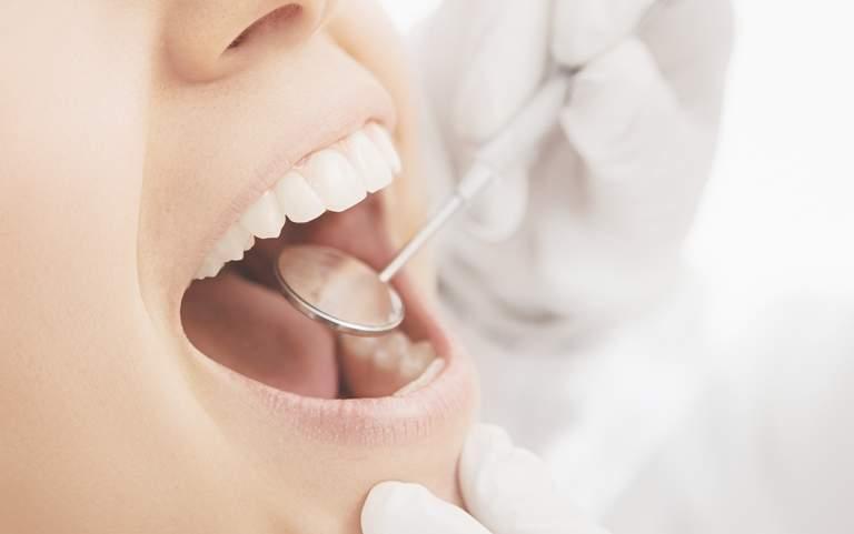 Parodontitis und Diabetes stehen in engen Wechselwirkungen miteinander