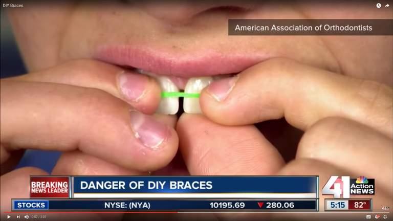 Do-it-yourself Zahnkorrekturen – Jugendliche behandeln sich selbst
