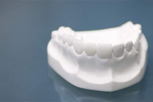 Zahnersatz aus Zirkonoxid