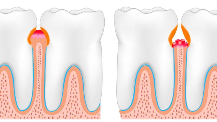 Neue Erkenntnisse zur Entstehung der Parodontitis