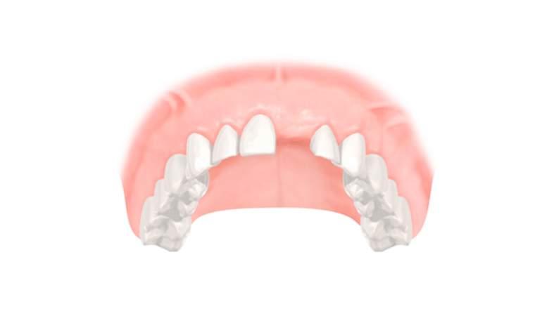 Die Ursachen für Zahnverlust