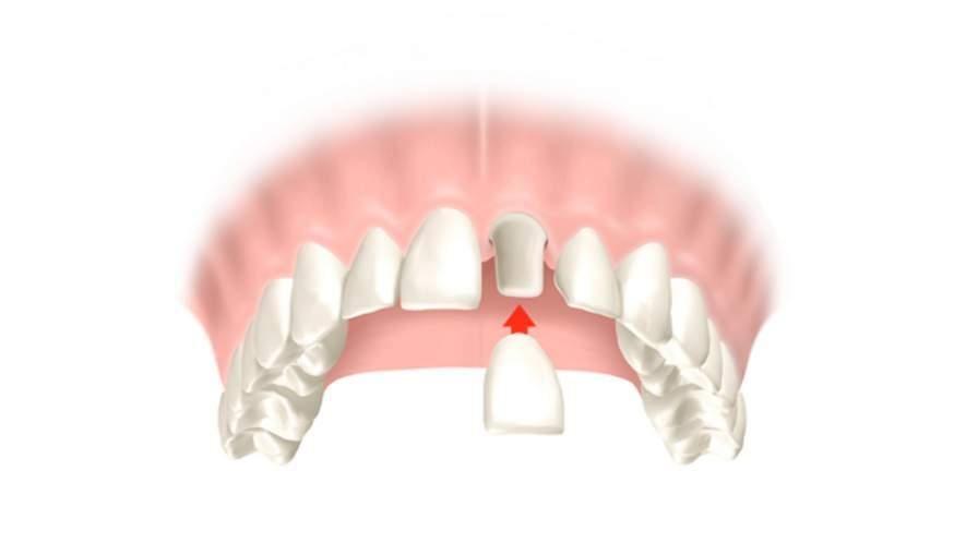 Warum sollten Zahnlücken mit Zahnersatz versorgt werden?