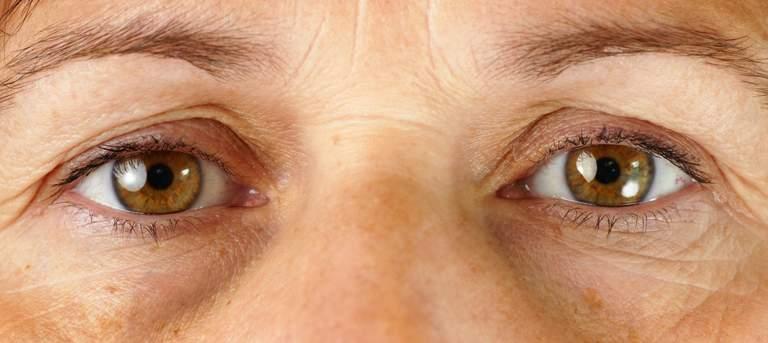 Auf den ersten Blick – Die Augen und was sie über Krankheiten verraten