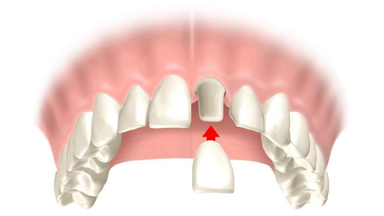 Konventioneller festsitzender Zahnersatz