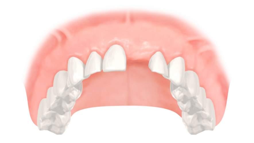 Implantate und Zahnersatz bei Zahnverlust
