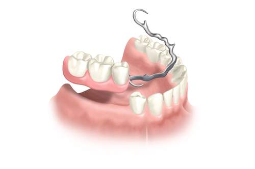 Konventioneller herausnehmbarer Zahnersatz | Zahnarzt