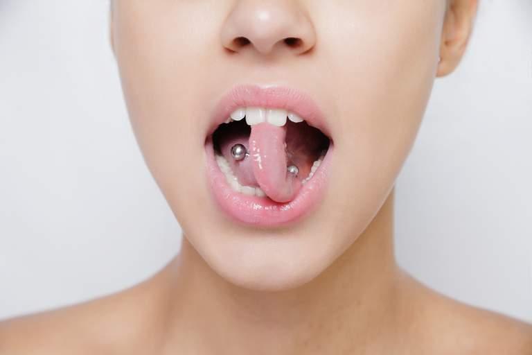 Studie: Zusammenhang zwischen Zungen- und Lippenpiercings und Parodontitis