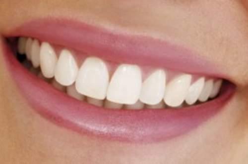 Nicht nur gesunde sondern auch ästhetisch perfekte Zähne sind unser Ziel