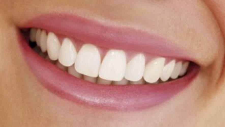 Lumineers: Perfekte Zähne ohne Schmerzen