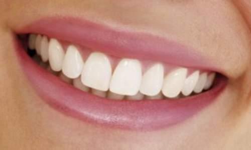 Люминиры: идельные зубы без боли