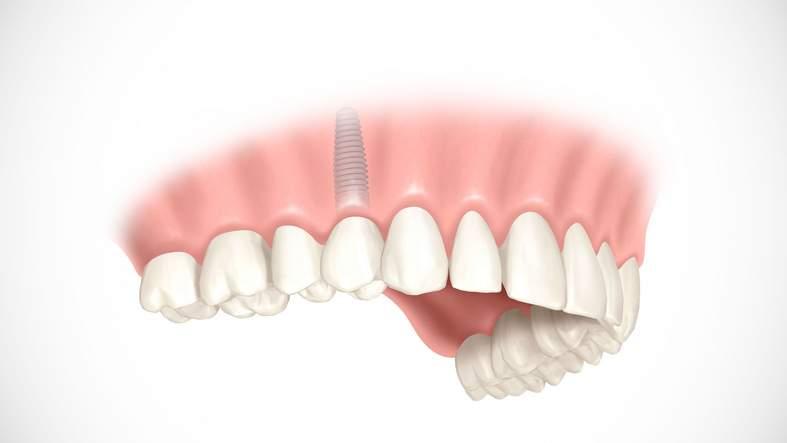 Zahnimplantate - neue, feste Zähne bei Zahnverlust