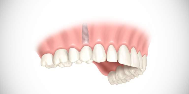 Vorteile minimal-invasiver Zahnimplantate
