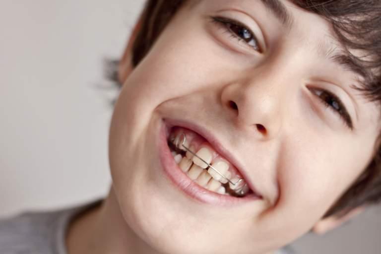 Flunkern beim Zahnarzt