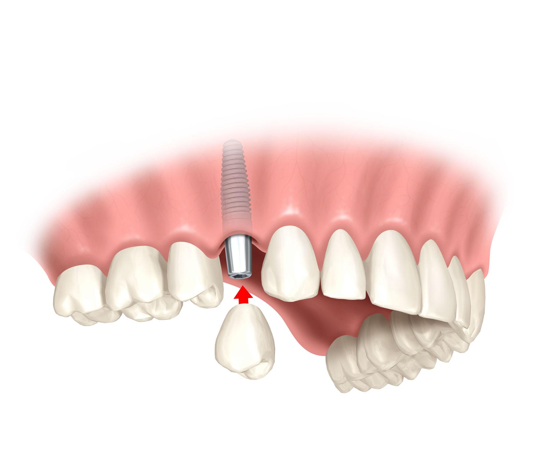 neuer zahn